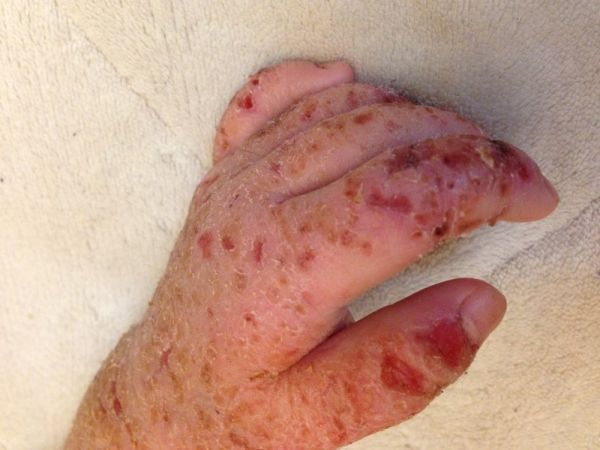 再発 様 発疹 症 カポジ 水痘